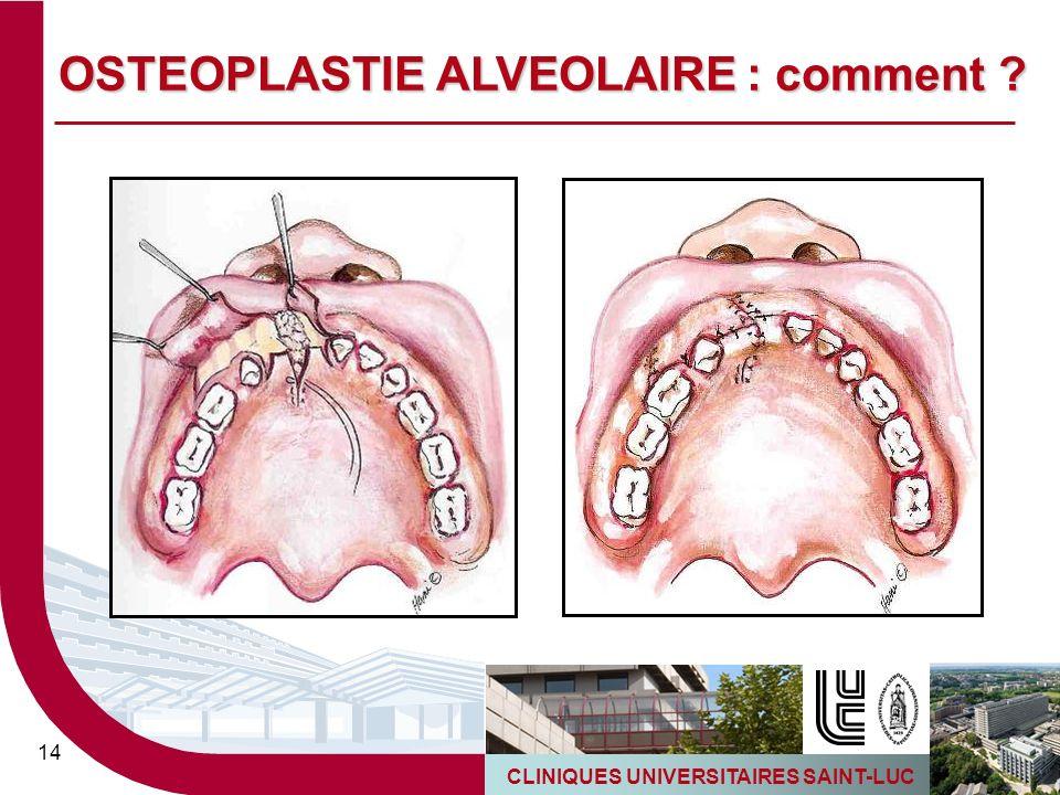 CLINIQUES UNIVERSITAIRES SAINT-LUC 14 OSTEOPLASTIE ALVEOLAIRE : comment ?