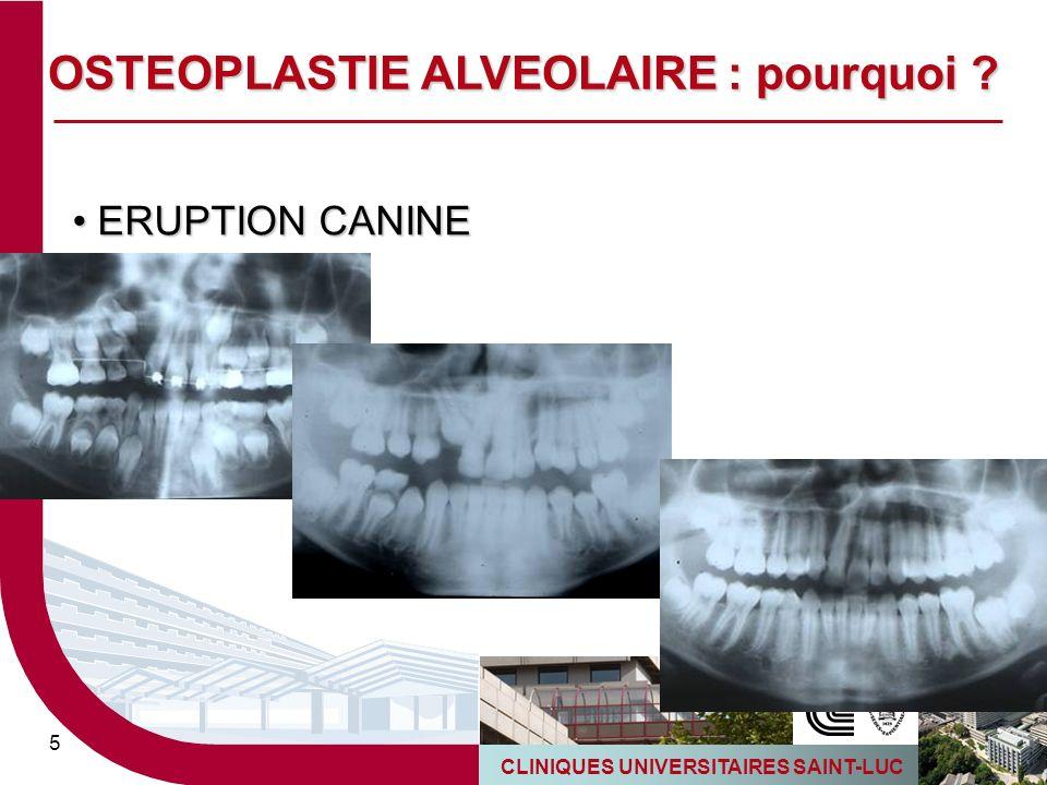 CLINIQUES UNIVERSITAIRES SAINT-LUC 5 ERUPTION CANINE ERUPTION CANINE OSTEOPLASTIE ALVEOLAIRE : pourquoi ?