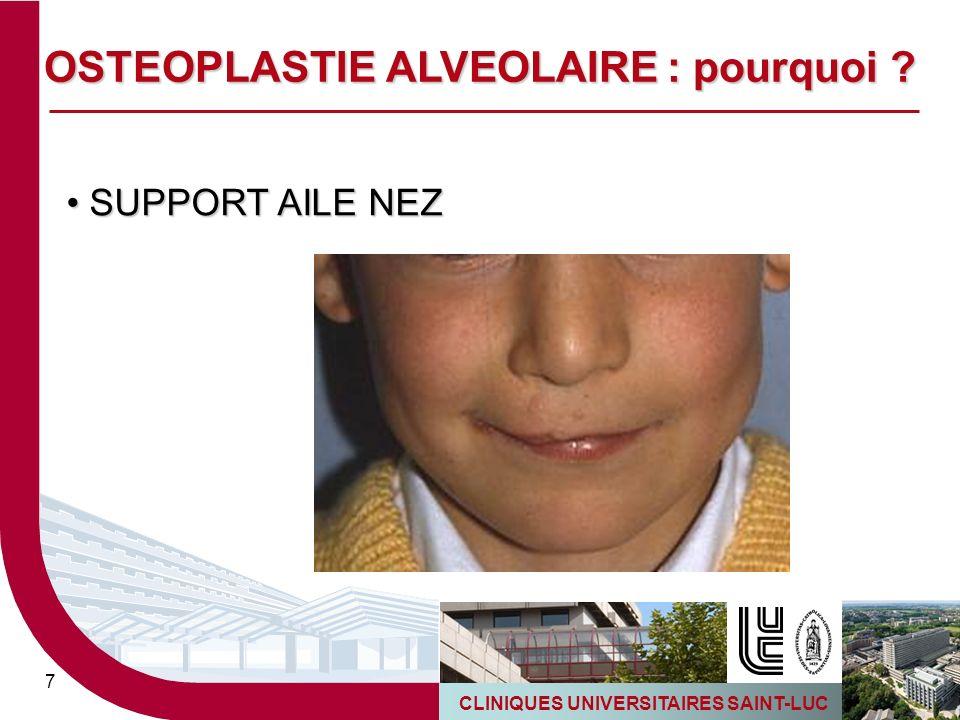 CLINIQUES UNIVERSITAIRES SAINT-LUC 7 SUPPORT AILE NEZ SUPPORT AILE NEZ OSTEOPLASTIE ALVEOLAIRE : pourquoi ?
