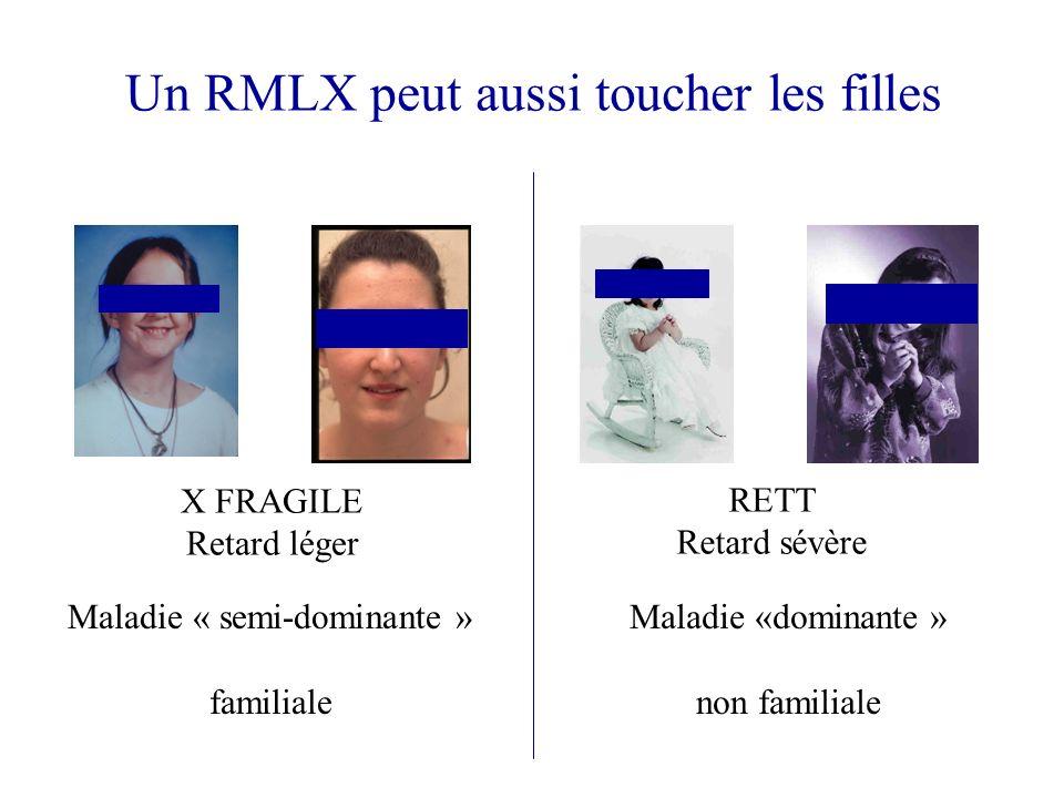 Un RMLX peut aussi toucher les filles X FRAGILE Retard léger RETT Retard sévère Maladie « semi-dominante » familiale Maladie «dominante » non familial