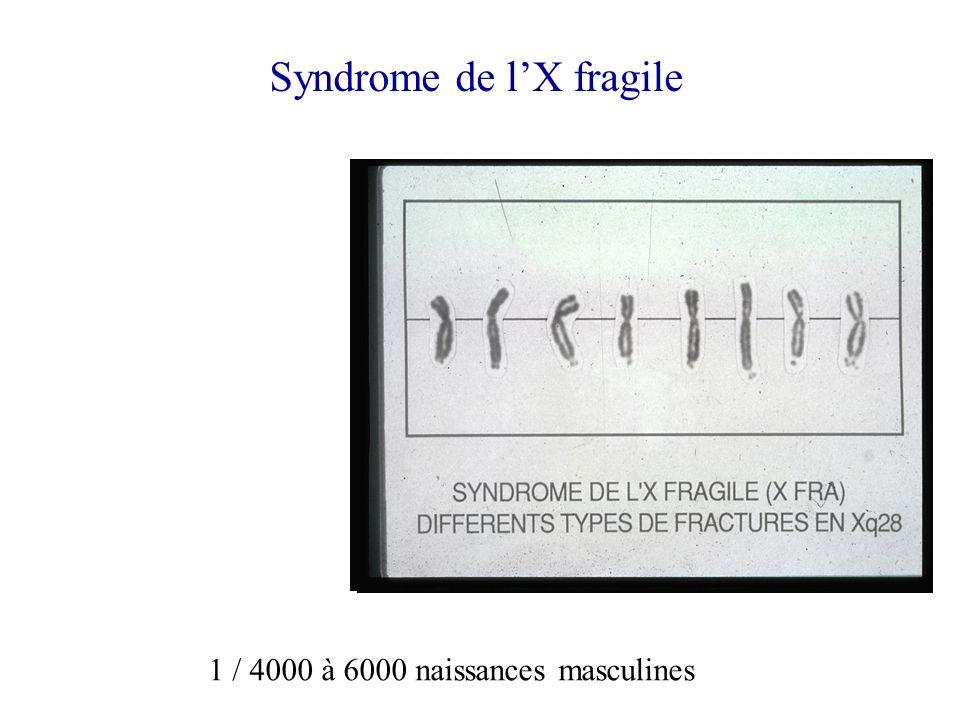 Syndrome de lX fragile 1 / 4000 à 6000 naissances masculines