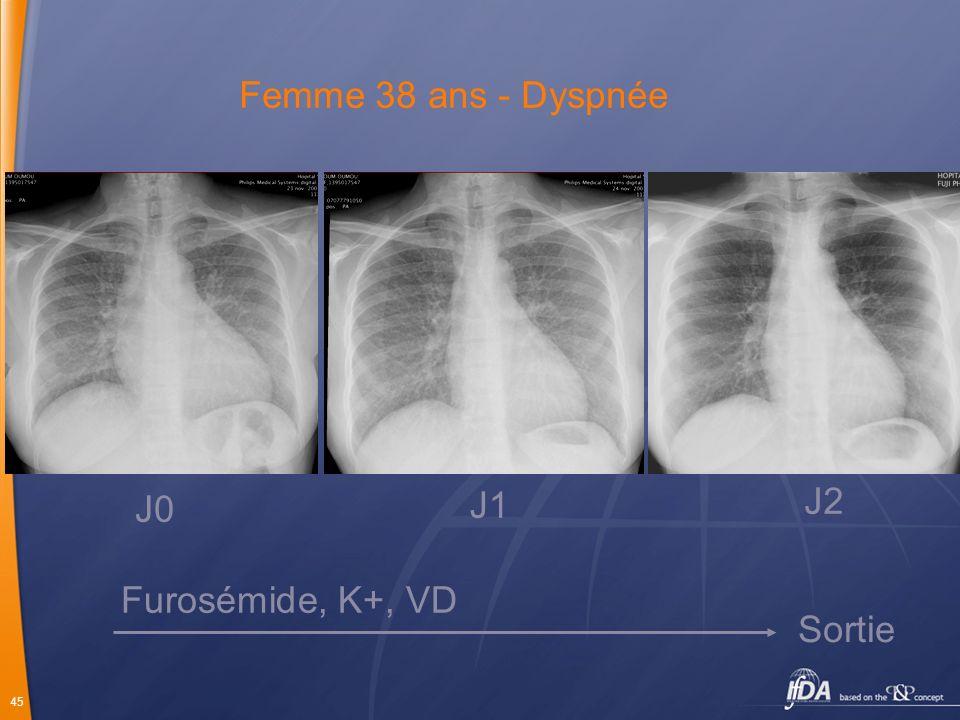 45 Femme 38 ans - Dyspnée J0 J1 J2 Furosémide, K+, VD Sortie
