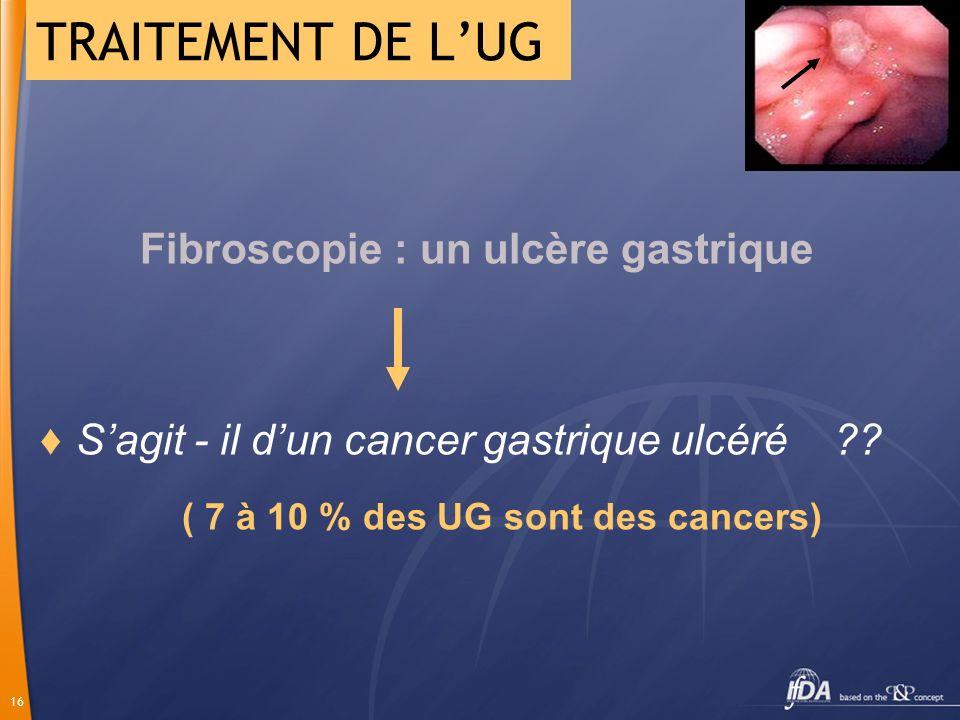 16 Fibroscopie : un ulcère gastrique Sagit - il dun cancer gastrique ulcéré ?? ( 7 à 10 % des UG sont des cancers) TRAITEMENT DE LUG