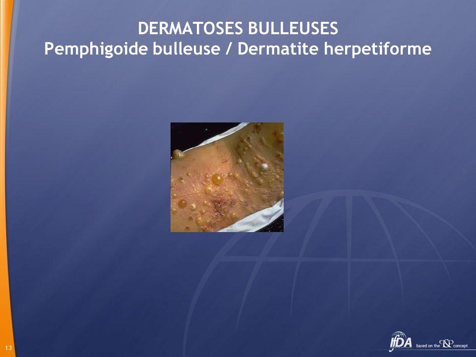 13 DERMATOSES BULLEUSES Pemphigoide bulleuse / Dermatite herpetiforme
