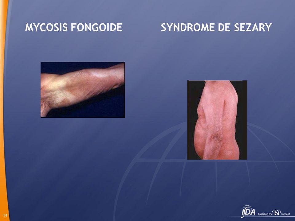 14 MYCOSIS FONGOIDE SYNDROME DE SEZARY