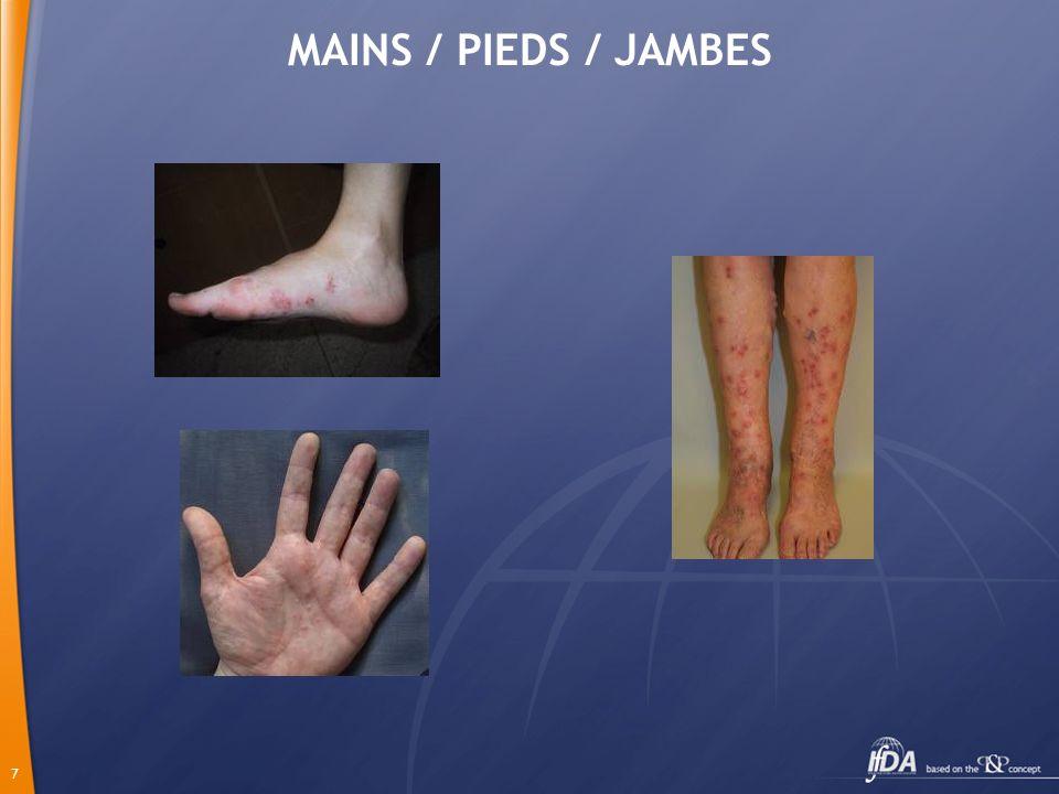 8 Prurit diffus Interrogatoire / Examen clinique Lésions cutanées Pas de lésions cutanées Spécifiques ou non Pathologie Examen clinique complet Dermatologique Examens complémentaires Pas dexamens Biopsie / IFD Examens complémentaires