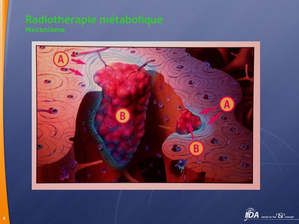 19 Chimiothérapie - RTM Meilleure efficacité sur la douleur sans toxicité médullaire majeure Baisse du taux de PSA de plus de 75% chez 32% des cas action anti-tumorale Amélioration de la survie globale.