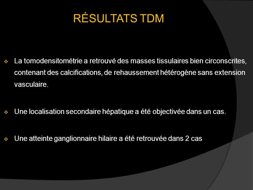 RÉSULTATS TDM La tomodensitométrie a retrouvé des masses tissulaires bien circonscrites, contenant des calcifications, de rehaussement hétérogène sans extension vasculaire.