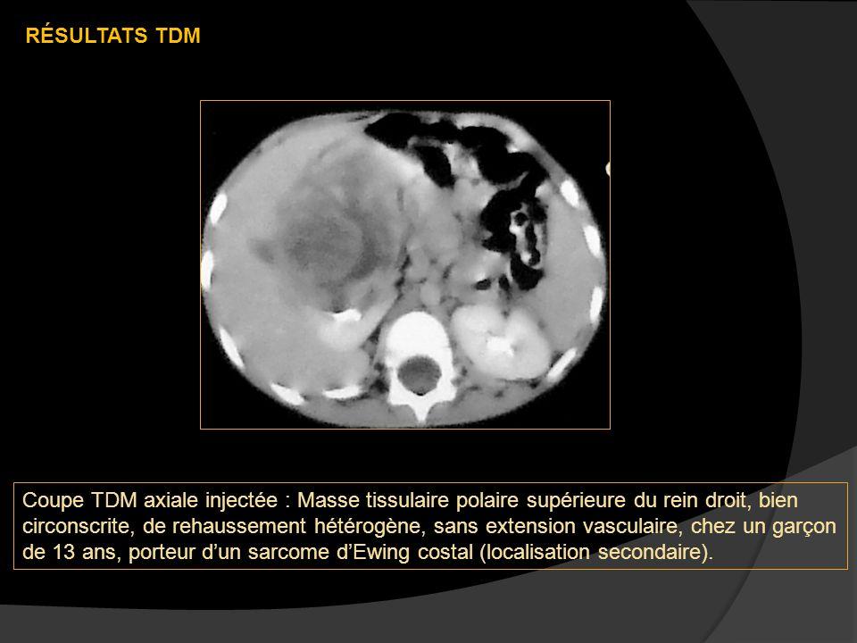 Coupe TDM axiale injectée : Masse tissulaire polaire supérieure du rein droit, bien circonscrite, de rehaussement hétérogène, sans extension vasculaire, chez un garçon de 13 ans, porteur dun sarcome dEwing costal (localisation secondaire).
