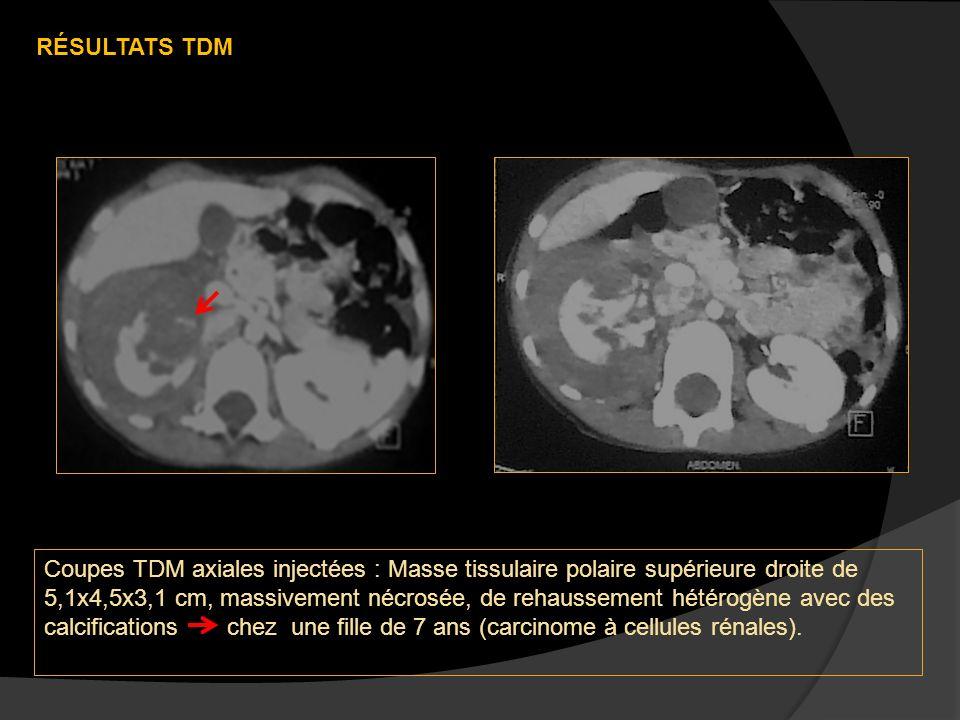Coupes TDM axiales injectées : Masse tissulaire polaire supérieure droite de 5,1x4,5x3,1 cm, massivement nécrosée, de rehaussement hétérogène avec des calcifications chez une fille de 7 ans (carcinome à cellules rénales).