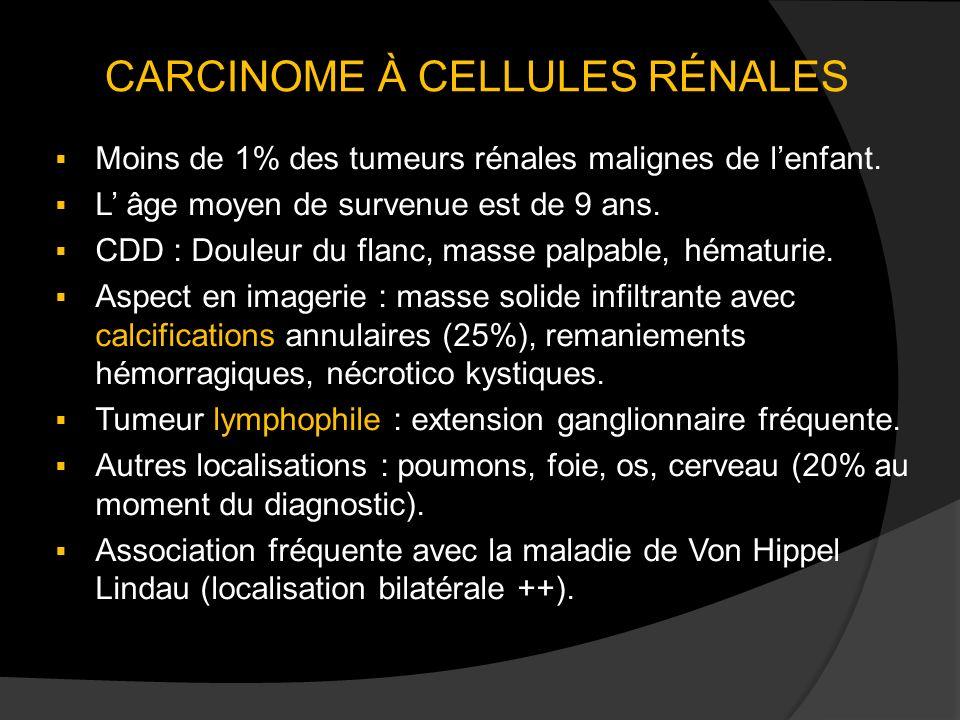 CARCINOME À CELLULES RÉNALES Moins de 1% des tumeurs rénales malignes de lenfant. L âge moyen de survenue est de 9 ans. CDD : Douleur du flanc, masse
