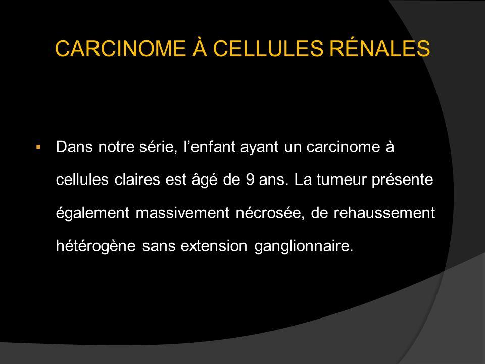 CARCINOME À CELLULES RÉNALES Dans notre série, lenfant ayant un carcinome à cellules claires est âgé de 9 ans. La tumeur présente également massivemen