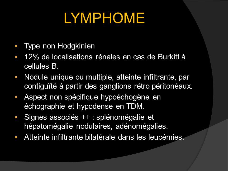 LYMPHOME Type non Hodgkinien 12% de localisations rénales en cas de Burkitt à cellules B. Nodule unique ou multiple, atteinte infiltrante, par contigu