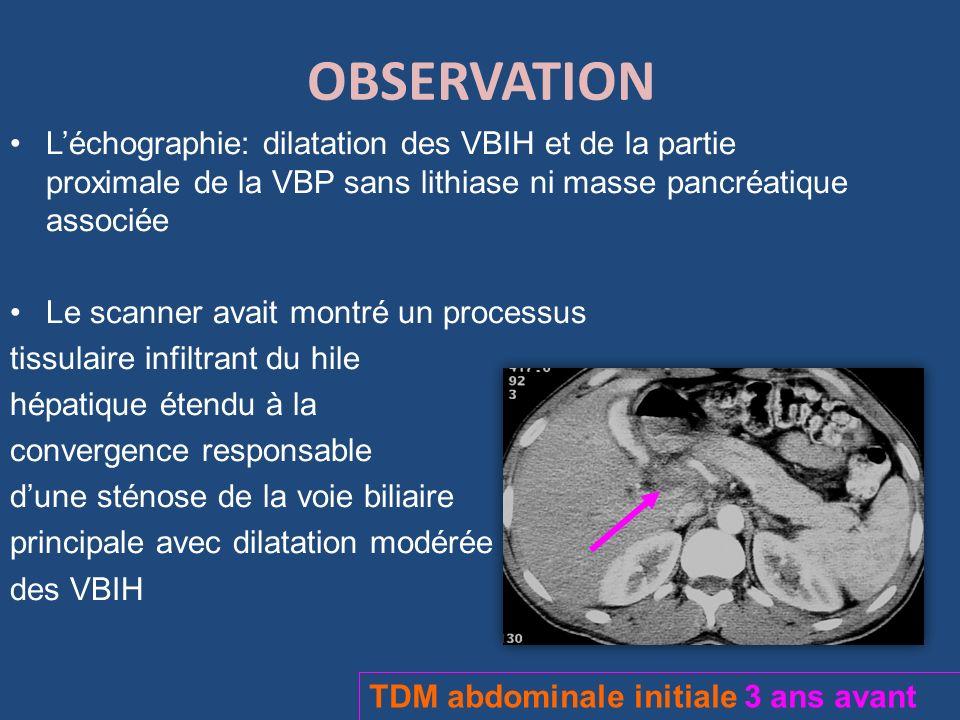 OBSERVATION Léchographie: dilatation des VBIH et de la partie proximale de la VBP sans lithiase ni masse pancréatique associée Le scanner avait montré