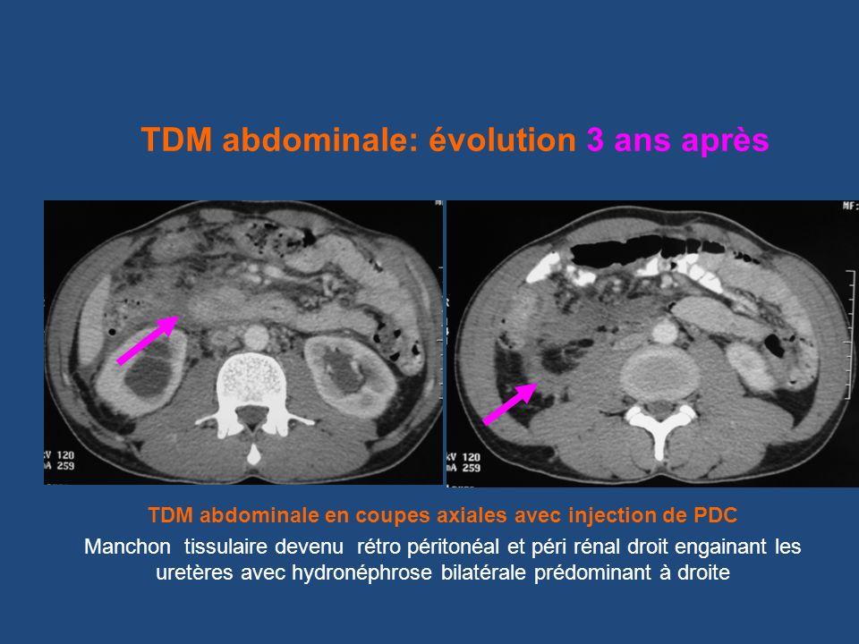 TDM abdominale en coupes axiales avec injection de PDC Manchon tissulaire devenu rétro péritonéal et péri rénal droit engainant les uretères avec hydr