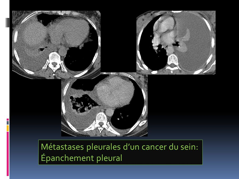 Métastases pleurales dun cancer du sein: Épanchement pleural