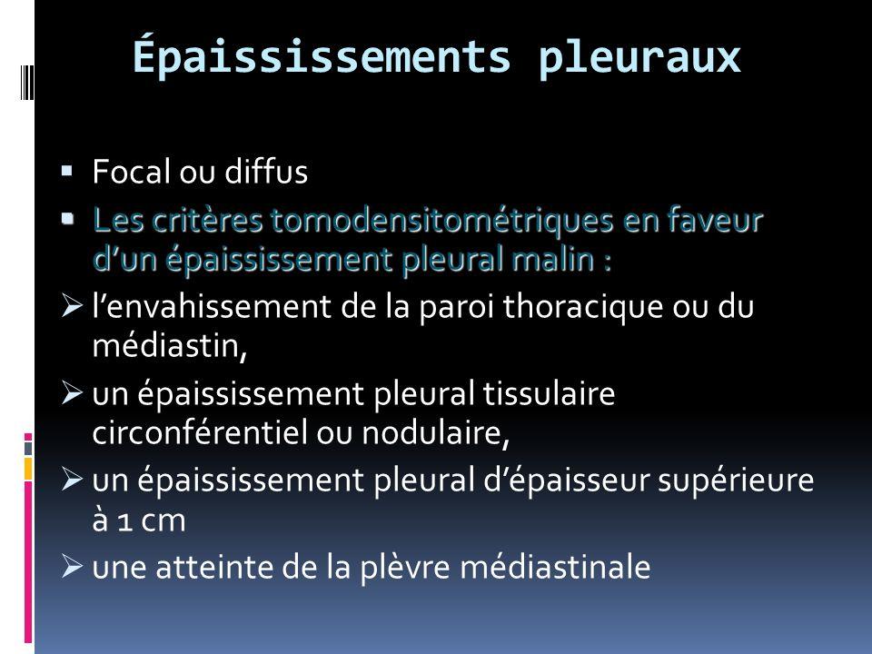Épaississements pleuraux Focal ou diffus Les critères tomodensitométriques en faveur dun épaississement pleural malin : Les critères tomodensitométriques en faveur dun épaississement pleural malin : lenvahissement de la paroi thoracique ou du médiastin, un épaississement pleural tissulaire circonférentiel ou nodulaire, un épaississement pleural dépaisseur supérieure à 1 cm une atteinte de la plèvre médiastinale