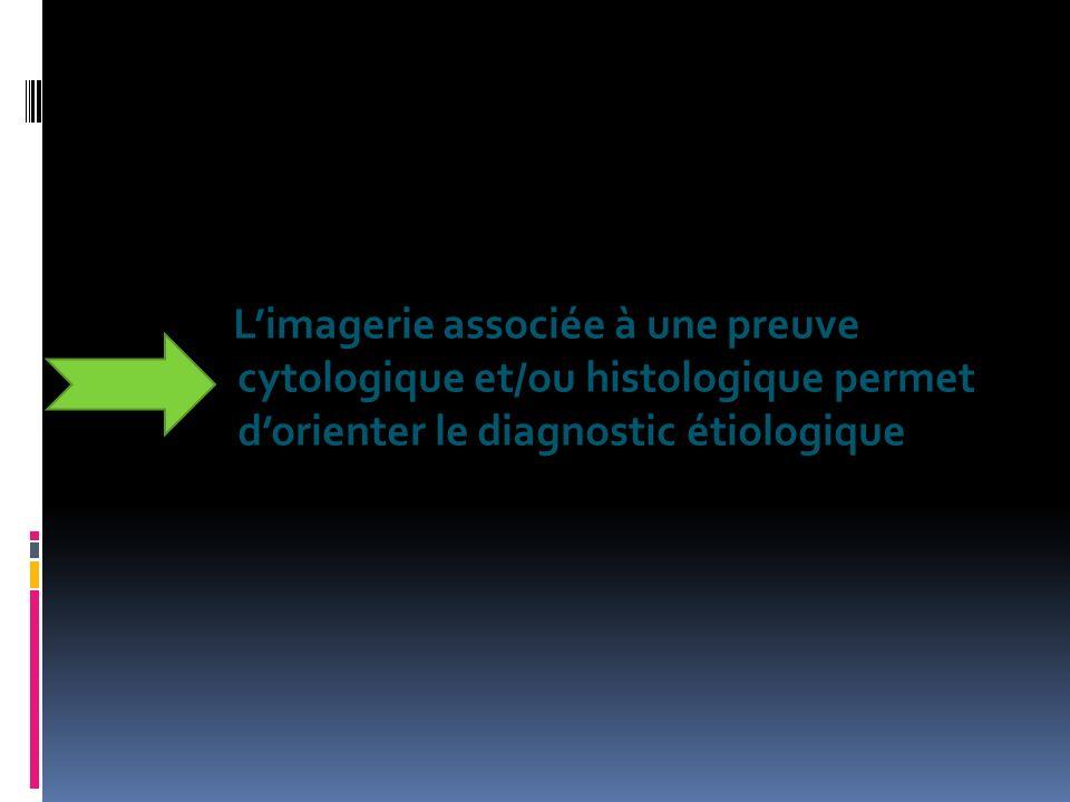 Limagerie associée à une preuve cytologique et/ou histologique permet dorienter le diagnostic étiologique
