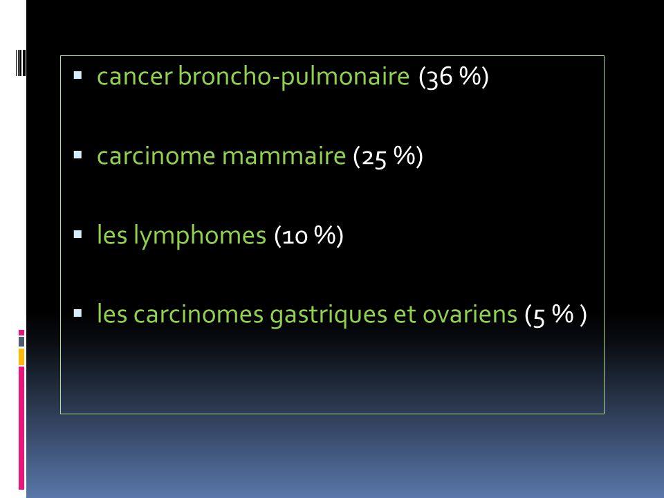 cancer broncho-pulmonaire cancer broncho-pulmonaire (36 %) carcinome mammaire carcinome mammaire (25 %) les lymphomes les lymphomes (10 %) les carcinomes gastriques et ovariens les carcinomes gastriques et ovariens (5 % )