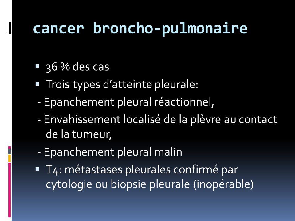 cancer broncho-pulmonaire 36 % des cas Trois types datteinte pleurale: - Epanchement pleural réactionnel, - Envahissement localisé de la plèvre au contact de la tumeur, - Epanchement pleural malin T4: métastases pleurales confirmé par cytologie ou biopsie pleurale (inopérable)