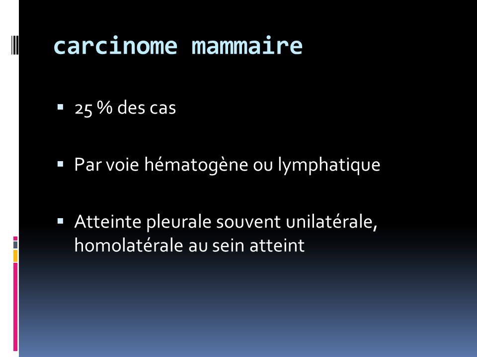 carcinome mammaire 25 % des cas Par voie hématogène ou lymphatique Atteinte pleurale souvent unilatérale, homolatérale au sein atteint