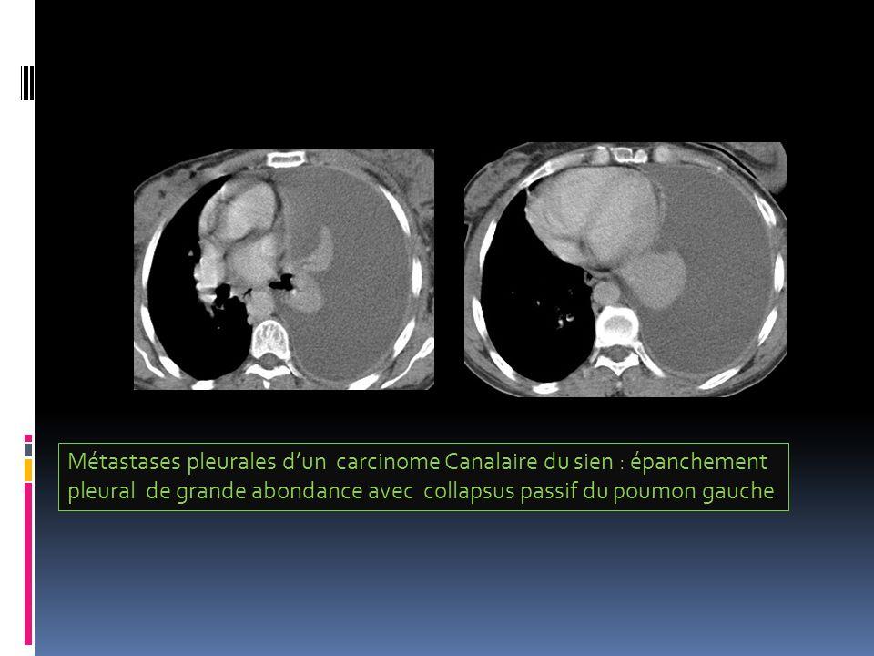 Métastases pleurales dun carcinome Canalaire du sien : épanchement pleural de grande abondance avec collapsus passif du poumon gauche
