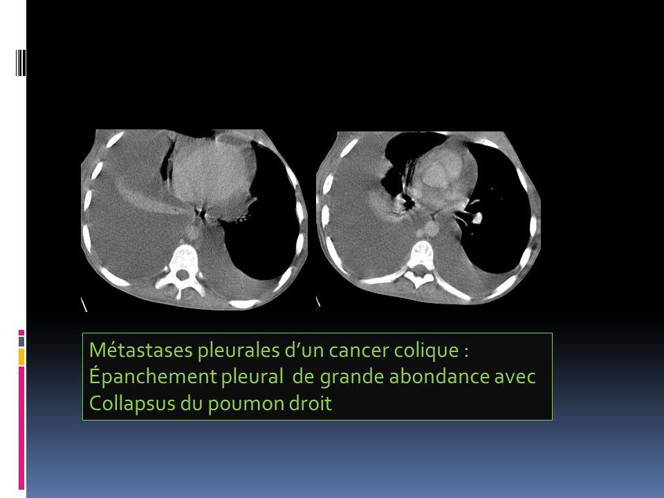 Métastases pleurales dun cancer colique : Épanchement pleural de grande abondance avec Collapsus du poumon droit