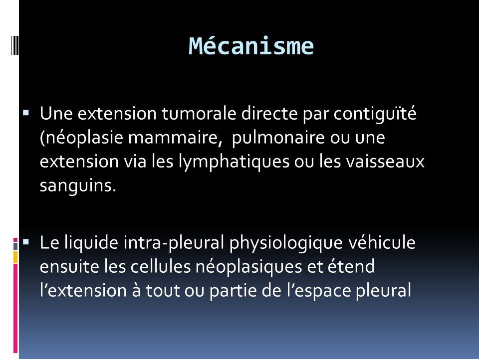 Mécanisme Une extension tumorale directe par contiguïté (néoplasie mammaire, pulmonaire ou une extension via les lymphatiques ou les vaisseaux sanguins.