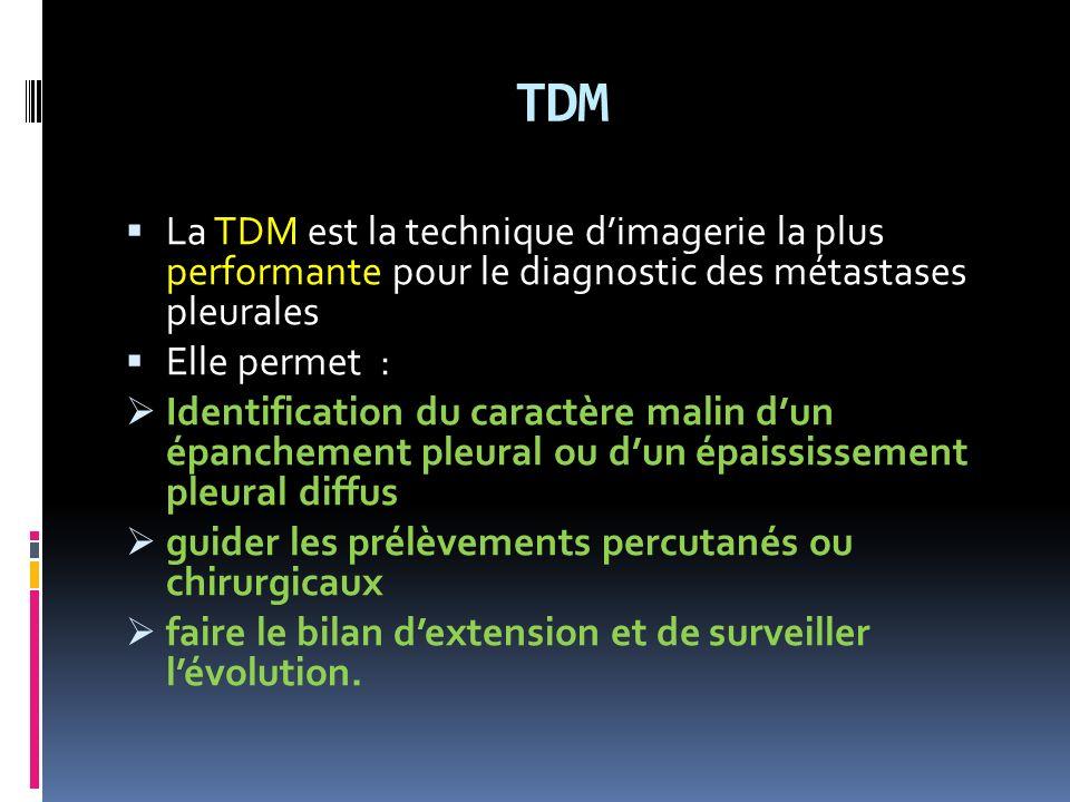 TDM La TDM est la technique dimagerie la plus performante pour le diagnostic des métastases pleurales Elle permet : Identification du caractère malin dun épanchement pleural ou dun épaississement pleural diffus guider les prélèvements percutanés ou chirurgicaux faire le bilan dextension et de surveiller lévolution.