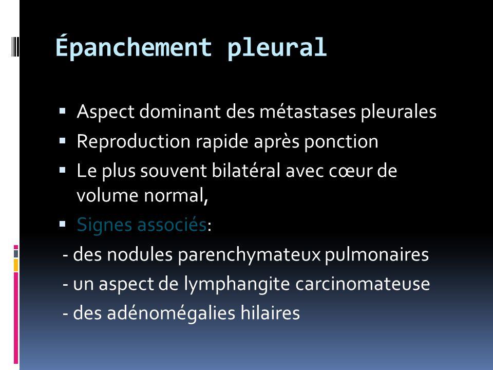 Épanchement pleural Aspect dominant des métastases pleurales Reproduction rapide après ponction Le plus souvent bilatéral avec cœur de volume normal, Signes associés Signes associés: - des nodules parenchymateux pulmonaires - un aspect de lymphangite carcinomateuse - des adénomégalies hilaires