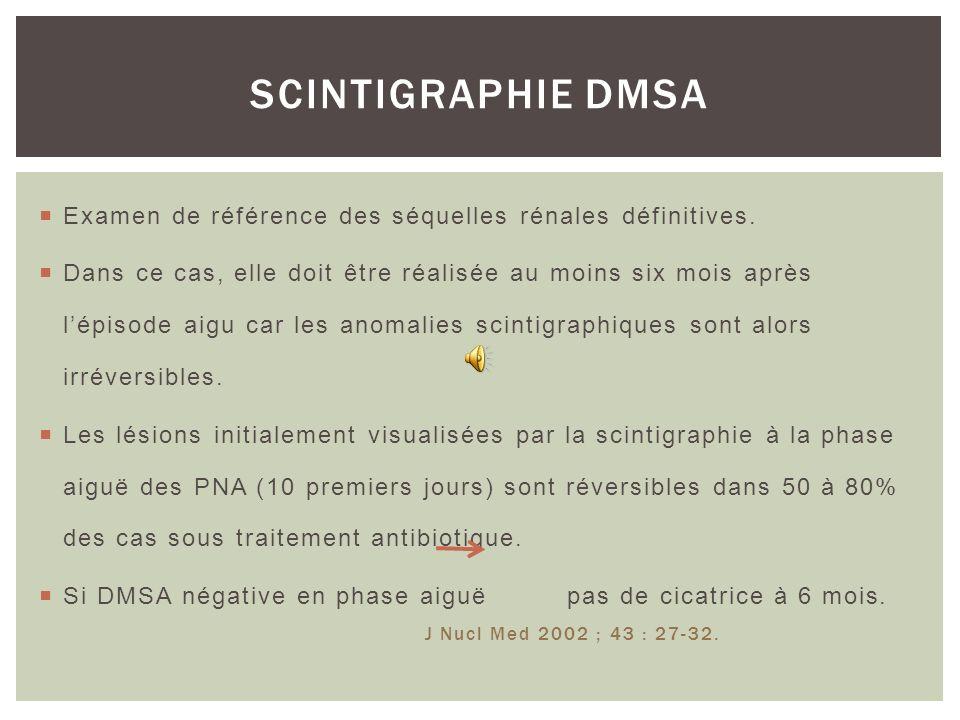99mTC-DMSA: acide dimercaptosuccinique marqué au technétium 99 Traceur spécifique statique du tubule relevant une excellente cartographie morphologiqu