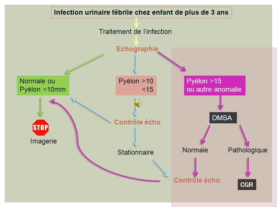 PNA: nouveau-né / NRS DE MOINS DE 3 ANS Infection urinaire fébrile Echographie Traitement de linfection UCR à distance Vu la prévalence élevé du RVU d