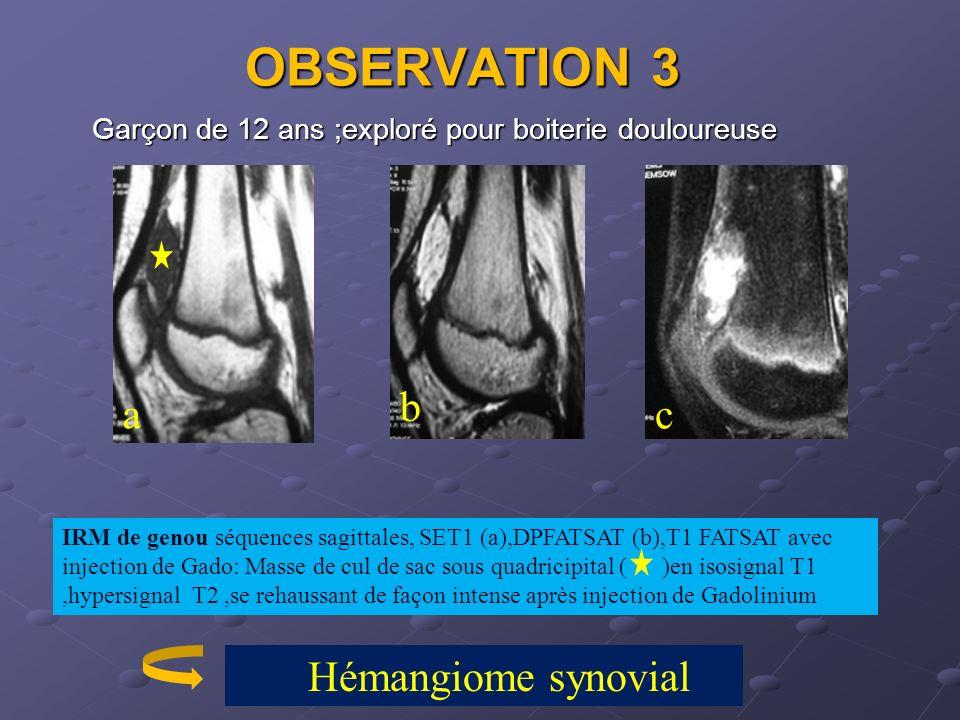 OBSERVATION 3 Garçon de 12 ans ;exploré pour boiterie douloureuse IRM de genou séquences sagittales, SET1 (a),DPFATSAT (b),T1 FATSAT avec injection de