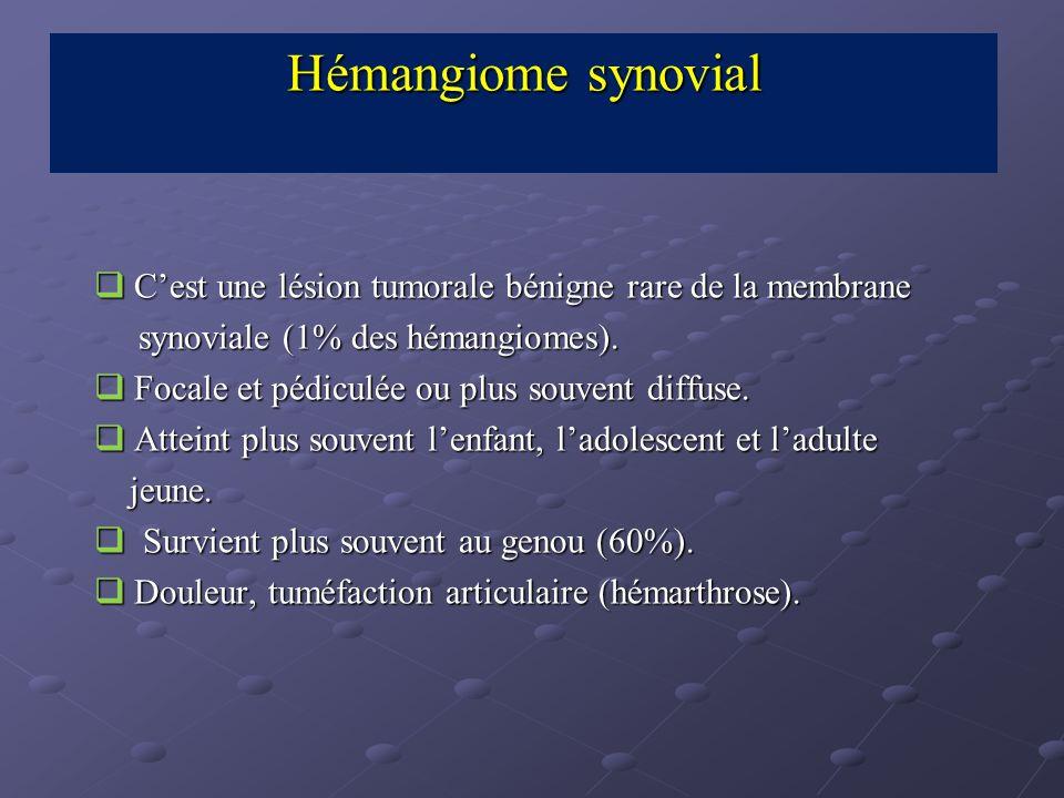 Cest une lésion tumorale bénigne rare de la membrane Cest une lésion tumorale bénigne rare de la membrane synoviale (1% des hémangiomes). synoviale (1