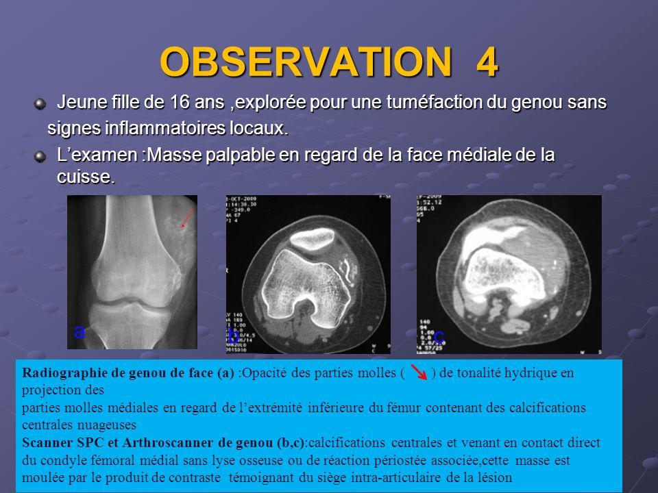 OBSERVATION 4 Jeune fille de 16 ans,explorée pour une tuméfaction du genou sans signes inflammatoires locaux. signes inflammatoires locaux. Lexamen :M