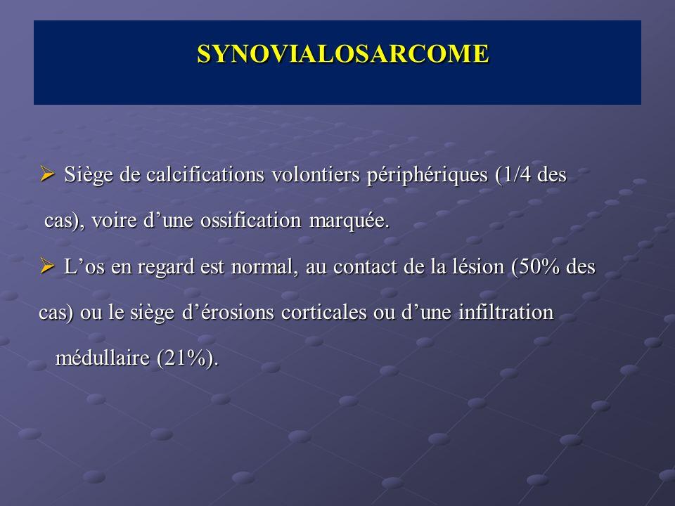 Siège de calcifications volontiers périphériques (1/4 des Siège de calcifications volontiers périphériques (1/4 des cas), voire dune ossification marq