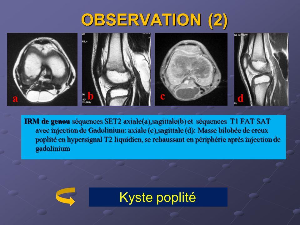Les kystes synoviaux sont dorigine articulaire et correspondent à une hernie de la membrane synoviale à travers la capsule articulaire à la faveur dune hyperpression articulaire, ou à une distension anormale de bourses séreuses qui communiquent avec larticulation adjacente.