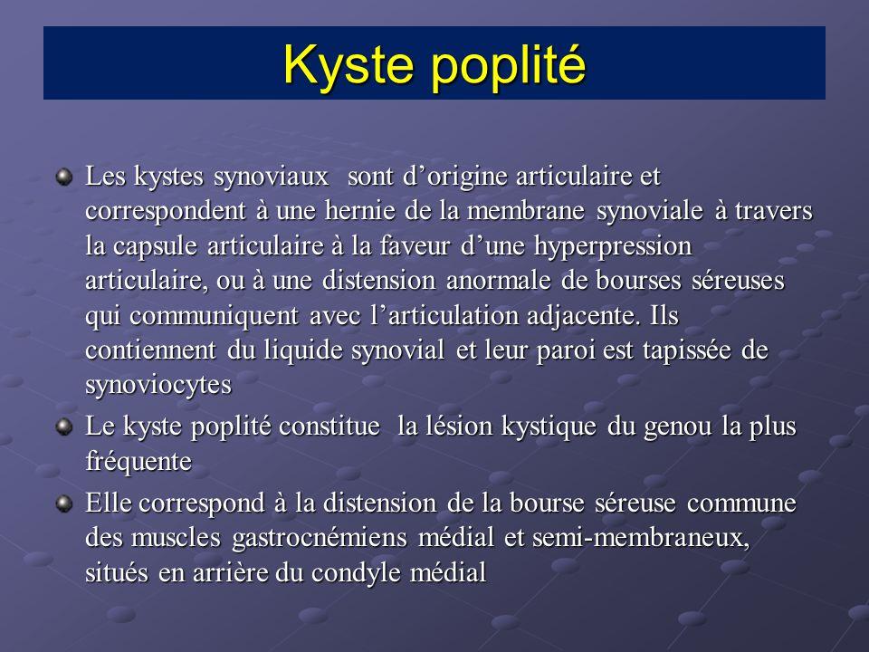 Echographie, un kyste synovial non compliqué se présente sous forme dune structure arrondie ou ovalaire parfois multiloculée, anéchogène, homogène et siège dun renforcement postérieur.