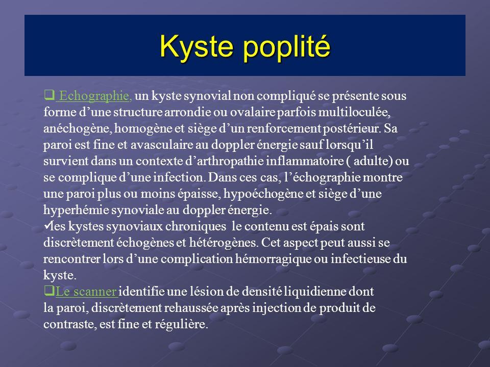 Echographie, un kyste synovial non compliqué se présente sous forme dune structure arrondie ou ovalaire parfois multiloculée, anéchogène, homogène et