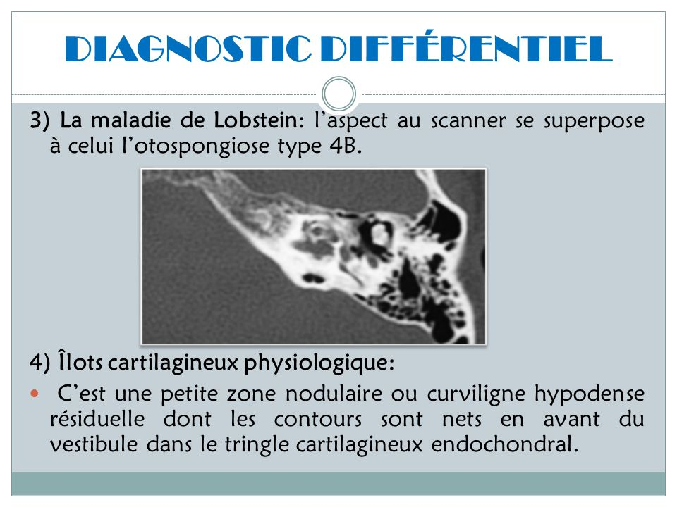 DIAGNOSTIC DIFFÉRENTIEL 3) La maladie de Lobstein: laspect au scanner se superpose à celui lotospongiose type 4B. 4) Îlots cartilagineux physiologique