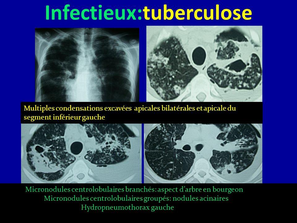 Infectieux:tuberculose Multiples condensations excavées apicales bilatérales et apicale du segment inférieur gauche Micronodules centrolobulaires bran