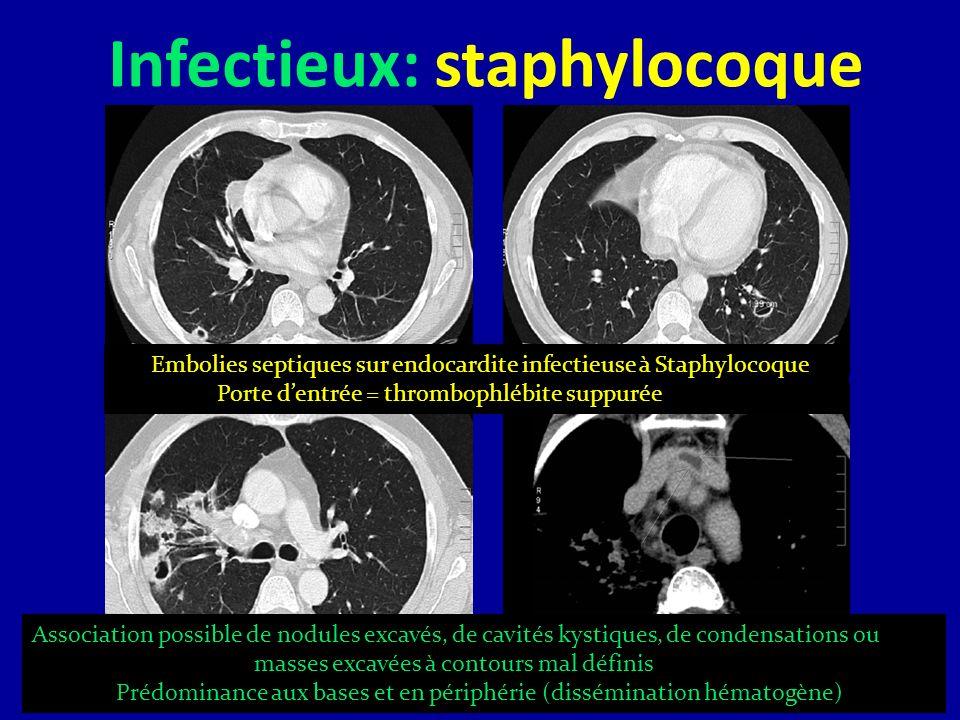 Infectieux: staphylocoque Embolies septiques sur endocardite infectieuse à Staphylocoque Porte dentrée = thrombophlébite suppurée Association possible