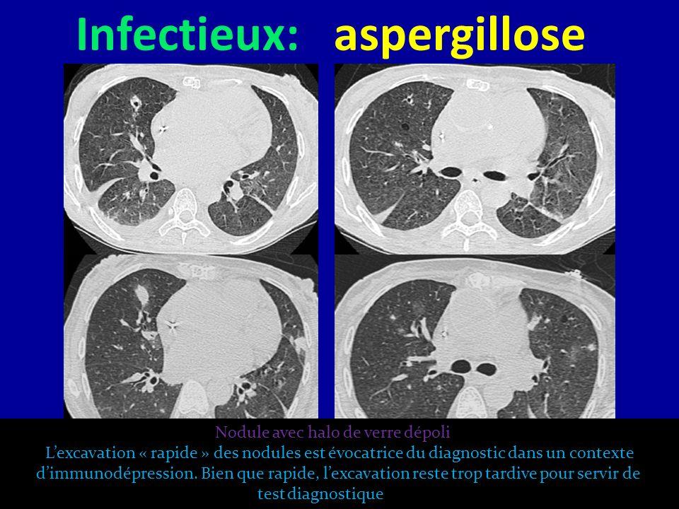 Infectieux: aspergillose Nodule avec halo de verre dépoli Lexcavation « rapide » des nodules est évocatrice du diagnostic dans un contexte dimmunodépr