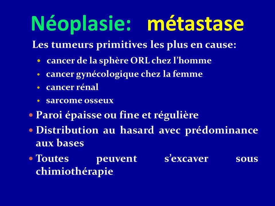 Néoplasie: métastase Les tumeurs primitives les plus en cause: cancer de la sphère ORL chez lhomme cancer gynécologique chez la femme cancer rénal sar