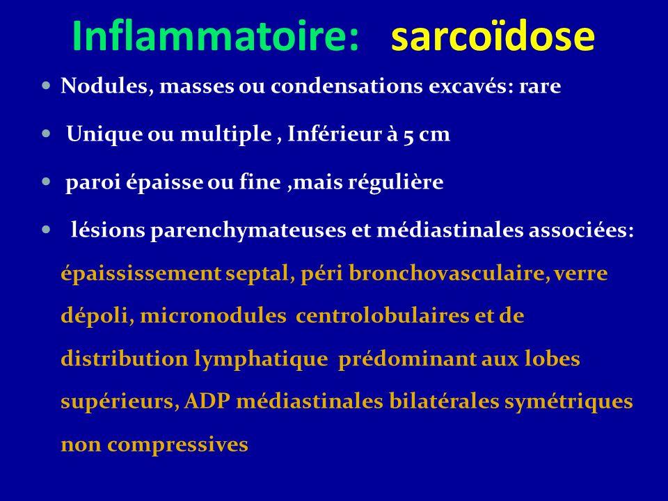 Inflammatoire: sarcoïdose Nodules, masses ou condensations excavés: rare Unique ou multiple, Inférieur à 5 cm paroi épaisse ou fine,mais régulière lés