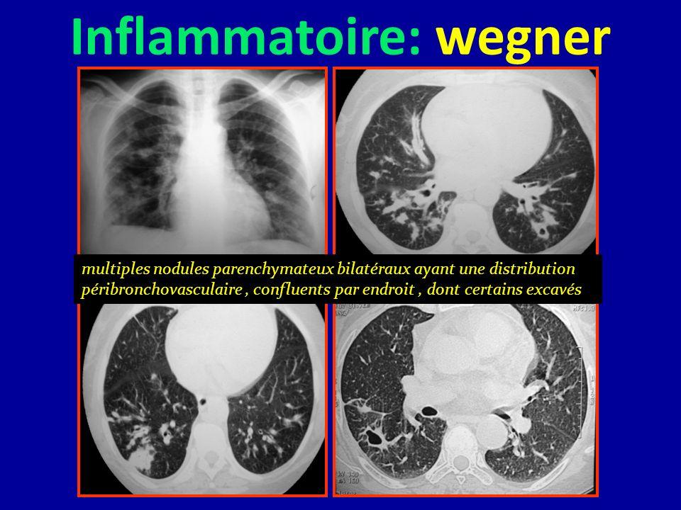 Inflammatoire: wegner multiples nodules parenchymateux bilatéraux ayant une distribution péribronchovasculaire, confluents par endroit, dont certains