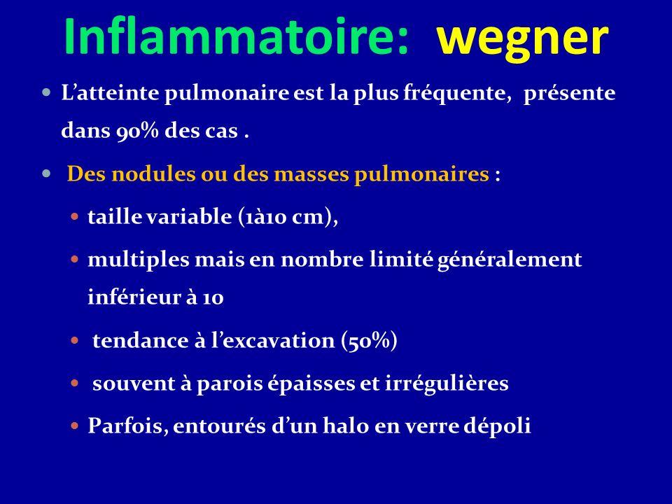 Inflammatoire: wegner Latteinte pulmonaire est la plus fréquente, présente dans 90% des cas. Des nodules ou des masses pulmonaires : taille variable (
