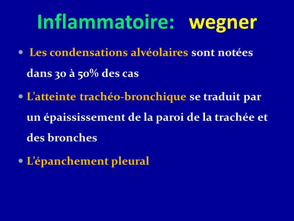 Inflammatoire: wegner Les condensations alvéolaires sont notées dans 30 à 50% des cas Latteinte trachéo-bronchique se traduit par un épaississement de