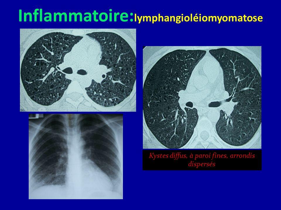 Inflammatoire: lymphangioléiomyomatose Kystes diffus, à paroi fines, arrondis dispersés