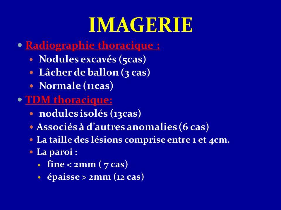 IMAGERIE Radiographie thoracique : Nodules excavés (5cas) Lâcher de ballon (3 cas) Normale (11cas) TDM thoracique: nodules isolés (13cas) Associés à d